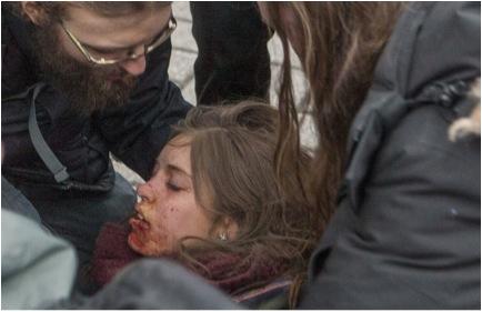 Naomi Tremblay-Trudeau, étudiante au CEGEP Garneau, 18 ans, visée à bout portant dans le bas du visage par un policier, déclare qu'elle continuera à manifester pour le bien commun Photo de Francis Vachon, Le Devoir